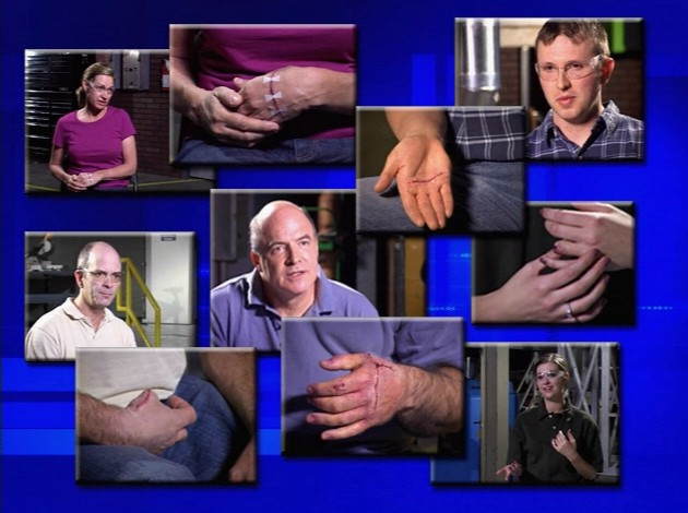 Several workers with hand injuries discussing their workplace accidents and what they learned